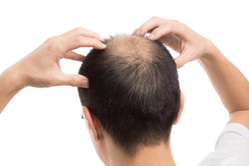 Naturheilmittel Gegen Haarausfall